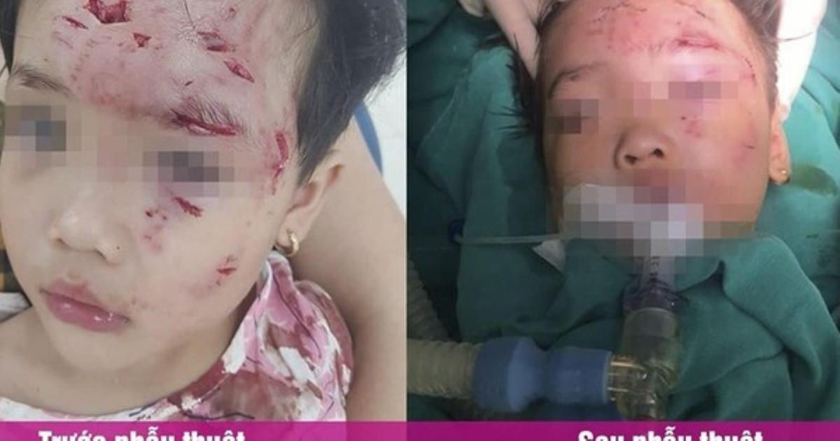 Phú Thọ: Bé gái 3 tuổi bị chó nhà hàng xóm cắn thương tâm
