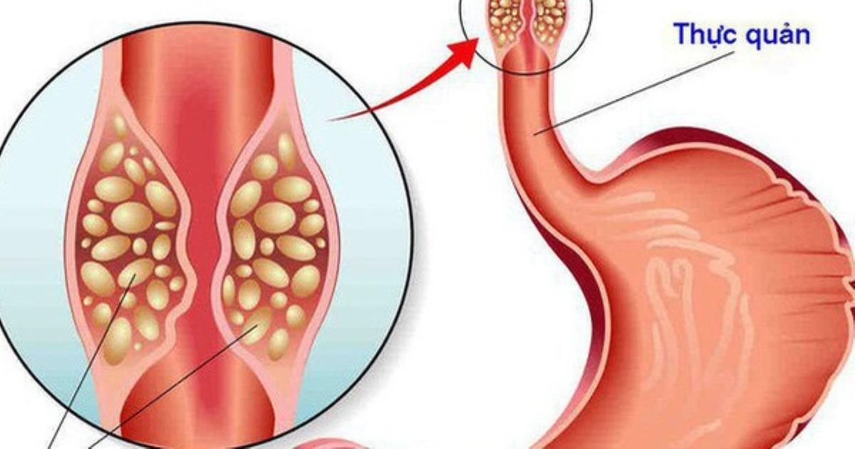 Phát hiện ra ung thư thực quản nhờ miếng thịt ngan