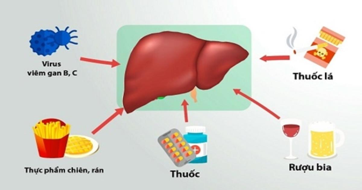 Men gan tăng cao - dấu hiệu cảnh báo ung thư gan