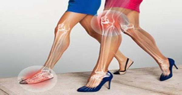 Bệnh lý xương khớp từ... giày cao gót