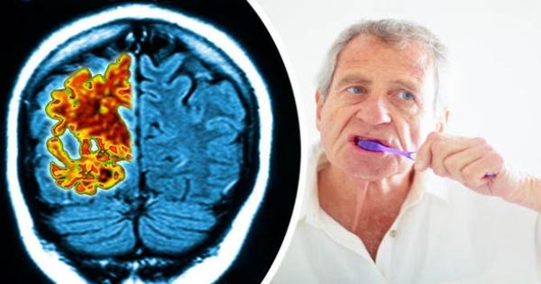 5 căn bệnh nguy hiểm có liên quan tới sức khỏe răng miệng kém