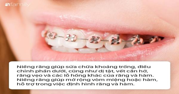 Niềng răng: Đâu là phương pháp hoàn hảo nhất cho bạn?