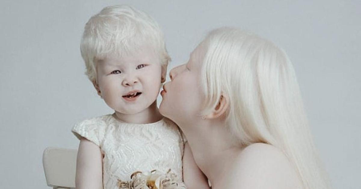 Dù sinh cách nhau 12 năm nhưng hai chị em gái vẫn khiến hàng nghìn người ngẩn ngơ vì sở hữu vẻ đẹp quá khác biệt