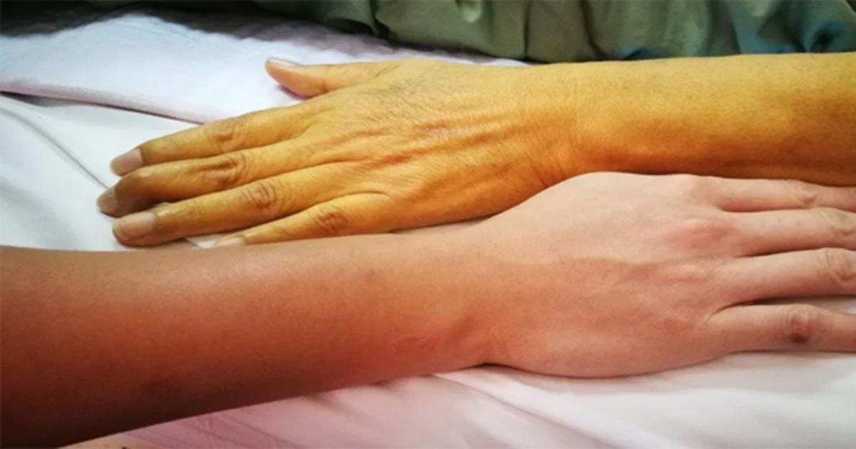 Chỉ một vài thay đổi nhỏ của màu da cũng tiết lộ nhiều bệnh nguy hiểm
