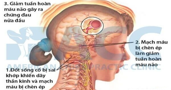 Chứng đau nửa đầu và cách xử trí
