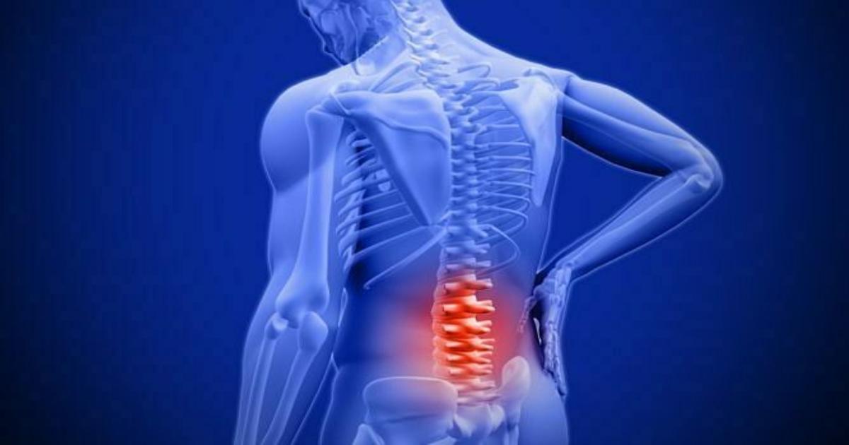 Dấu hiệu ung thư di căn đến xương