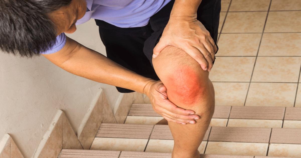 Đau đầu gối khi leo cầu thang: Bạn nên cẩn trọng với dấu hiệu này