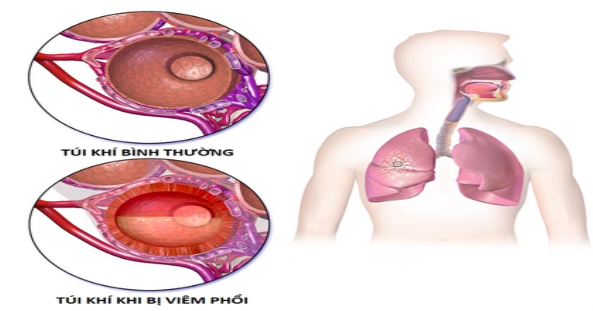 Dưỡng âm thanh phế thang - phương thuốc quý hồi phục tốt sau viêm phổi