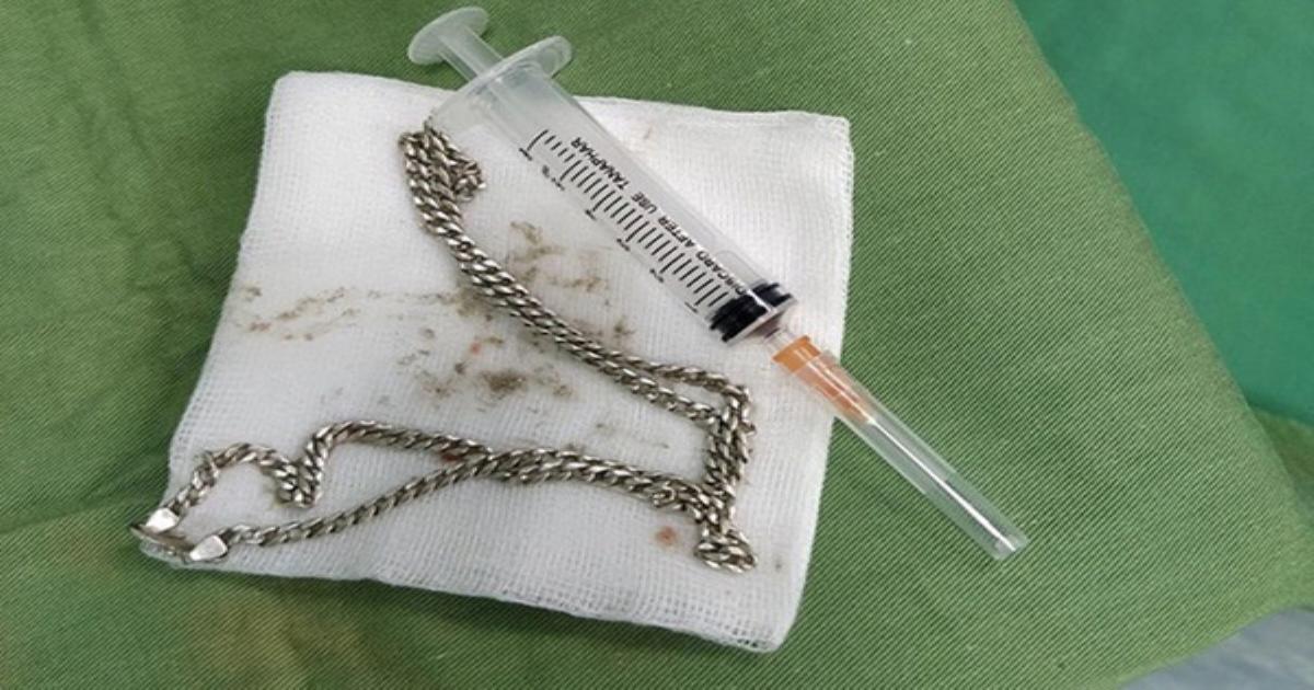 Gắp sợi dây chuyền bạc từ bụng bệnh nhi 29 tháng tuổi