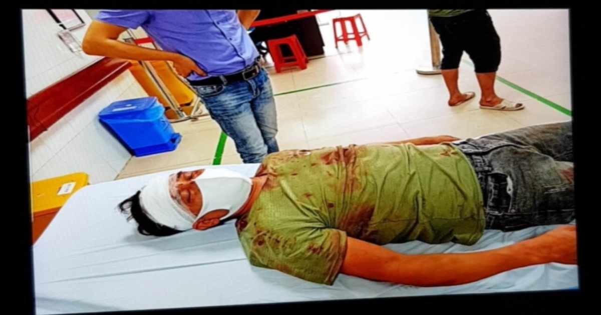 Yên Phong – Bắc Ninh: Kỳ án nhiều vết thương chằng chịt ở đầu chỉ 3% thương tích