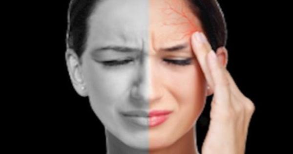 Thuốc mới điều trị đau nửa đầu ở người lớn: Cảnh báo rủi ro khi dùng
