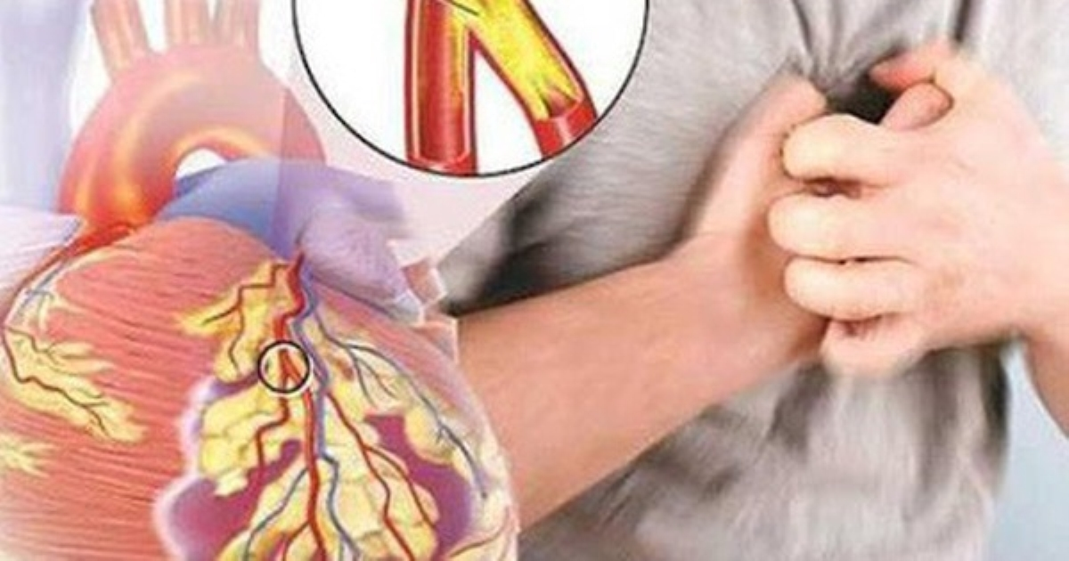 Bệnh nhân tim mạch cần lưu ý những điều này để sống khoẻ trong đại dịch COVID-19