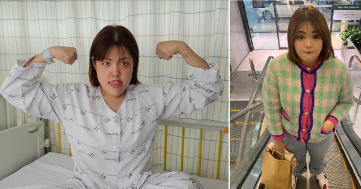Thánh ăn Yang Soo Bin mắc ung thư tuyến giáp: Do ăn nhiều trước kia hay do giảm cân sau này?