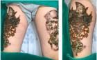 Bị nhiễm trùng nặng cả 2 đùi vì xóa xăm theo lời quảng cáo trên mạng