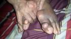 Biến chứng nguy hiểm của bệnh gout ít người biết