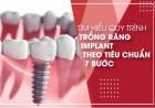 Tìm hiểu quy trình trồng răng Implant theo tiêu chuẩn 7 bước