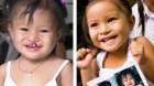 Chia sẻ: Caritas Sài Gòn tổ chức chương trình mổ sứt môi, hở hàm ếch cho trẻ em nghèo