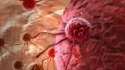 Tìm ra loại 'vũ khí' mới chống căn bệnh ung thư
