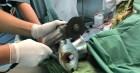 Tai nạn kinh hoàng: Người phụ nữ bị máy xay thịt cuốn nát bàn tay vì hành động bất cẩn này