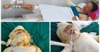 Chồng mất, 3 mẹ con bị bỏng nặng sau vụ cháy điều hòa đang rất cần sự giúp đỡ