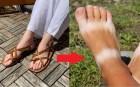 Bí quyết đi sandal/dép xỏ ngón mà bàn chân vẫn xinh, không bị cháy nắng loang lổ