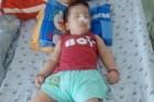 Bé 21 tháng bại não vì hóc trà sữa, cách cứu con trong 4 phút