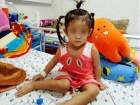 Bé gái 3 tuổi đột quỵ nhồi máu não nguy kịch