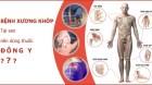 Cách chữa đau nhức xương khớp tại nhà đơn giản, hiệu quả từ cây thuốc, Bài thuốc quen thuộc