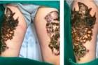 Hà Nội: Biến chứng rợn người khi xóa xăm tại spa
