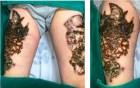 Hà Nội: Nam thanh niên nát bét hai đùi vì biến chứng xóa xăm