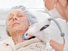 Nguyên nhân xuất hiện nếp nhăn trên mặt và cách khắc phục an toàn