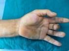Viêm bao hoạt dịch gân gấp: Phát hiện sớm, điều trị hiệu quả