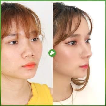 Giải pháp loại bỏ biến chứng trong nâng mũi cấu trúc - ảnh 1