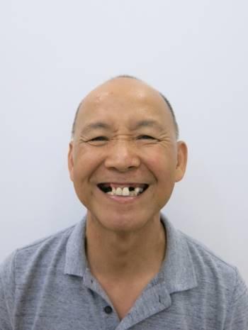 Tình trạng răng của chú Michael gặp phải nhiều vấn đề nghiêm trọng