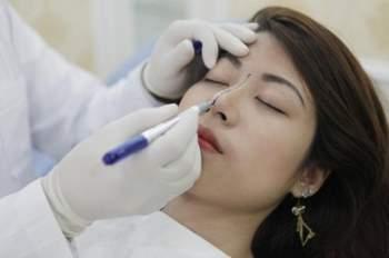 Giải pháp loại bỏ biến chứng trong nâng mũi cấu trúc - ảnh 3