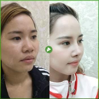 Giải pháp loại bỏ biến chứng trong nâng mũi cấu trúc - ảnh 4