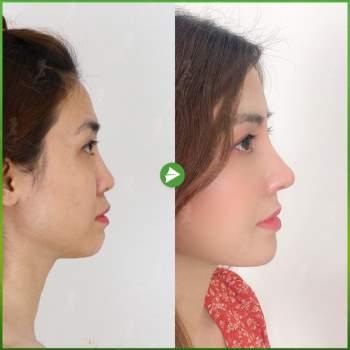 Giải pháp loại bỏ biến chứng trong nâng mũi cấu trúc - ảnh 5