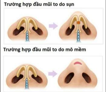 Giải pháp loại bỏ biến chứng trong nâng mũi cấu trúc - ảnh 6