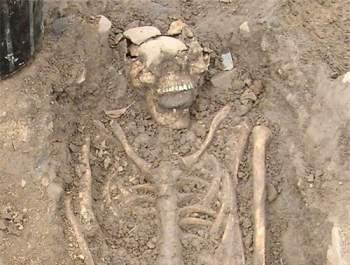 Hình ảnh bộ xương với hòn đá ngậm trong miệng. Ảnh: Daily Mail