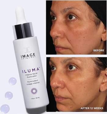 Hiệu quả trị nám sau 12 tuần sử dụng serum Image Iluma Intense Facial Illuminator