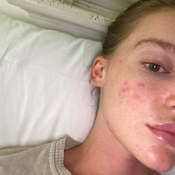 Mẫu nữ người Úc tiết lộ cách chữa hết mụn trứng cá Ảnh 2