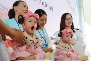 Hai bé song sinh đã được tách rời, Trúc Nhi, Diệu Nhi cười rạng rỡ trong ngày xuất viện - ảnh 1