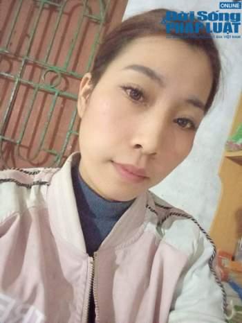 Tiêm filler giá rẻ, cô gái Hà Nội nuốt trái đắng vì gương mặt biến dạng - Ảnh 1