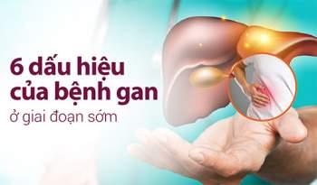 Dấu hiệu của bệnh gan không khó để nhận biết