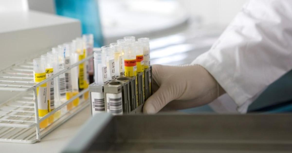 Chất lượng xét nghiệm giúp chẩn đoán và điều trị bệnh nhân tốt hơn