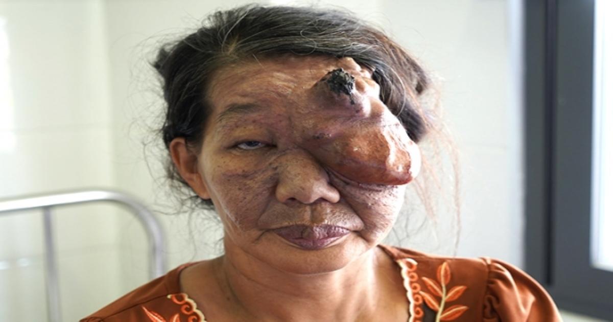 Trả lại khuôn mặt cho người phụ nữ 30 năm mang u mạch máu khổng lồ