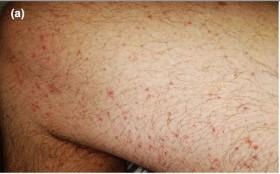 Những dấu hiệu nhận biết bệnh Covid-19 qua da