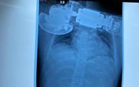Cứu bệnh nhân bị máy chà găm vào ngực