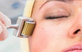 Giải pháp hữu hiệu chặn đứng vết sẹo lõm do lăn kim tại nhà