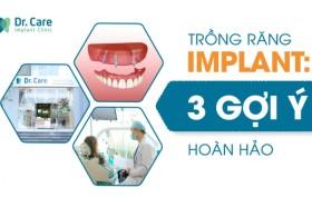 3 gợi ý quan trọng cho người trung niên khi chọn nha khoa trồng răng Implant